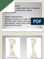 fraktur segmental