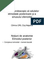 Etmoidectomia posterioara