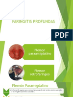 Faringitis Agudas y Cronicas