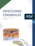 INFECCIONES CEREBRALES