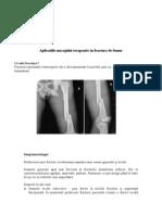 Aplicatiile Masajului Terapeutic in Fractura de Femur