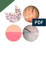 Connective Tissue Specimen