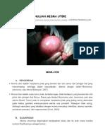 Laporan Pendahuluan Mioma Uteri Dan Kista Ovarium