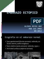 Emb. Ectopico