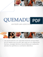 EXPOSICION QUEMADURAS