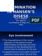 Examination in Hansen's Disease-Ajay v Menon