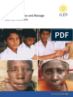 Management Leprosy Reactions