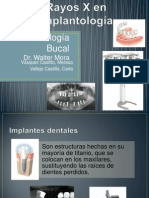 Rayos X en Implantologia