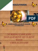 Cholelitiasis Present Case