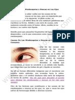 Causas de Las Miodesopsias o Moscas en Los Ojos