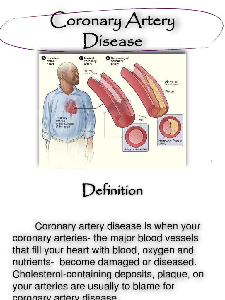 coronary artery disease | myocardial infarction | angina pectoris