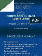 BRUCELOSIS HUMANA