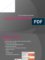 11tooth Extraction