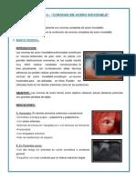 PRACTICA Nº14 CORONAS DE ACERO INOXIDABLE