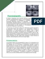 Fluorangiografía final