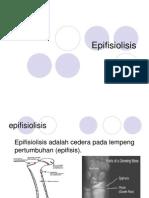 Epifisiolisis fix.ppt