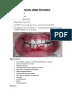 Gingivitis Ulcero Necrosante