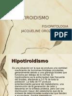 Hipotiroidismo Ppt x