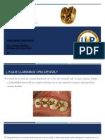 ORO DENTAL (Materiales Dentales II)