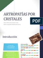 Artropatías por cristales