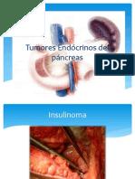 Tumores Endócrinos del páncreas