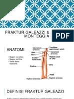 Fraktur galeazzi & Monteggia