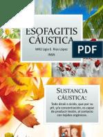 ESOFAGITIS CAUSTICA
