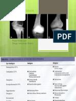 tumoresoseos-130417140914-phpapp02