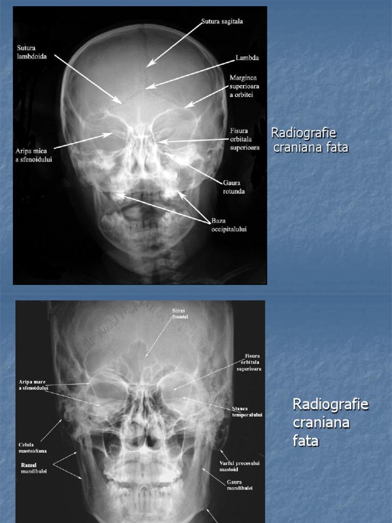 radiografie rx)