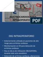 Electrocardiografia Intraoperatoria Oaxaca