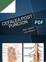 Cefalea Post Puncion