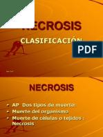 necrosisss-100717105606-phpapp01