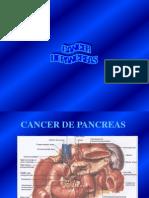CA Pancreas 2