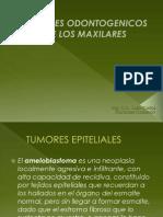 Tumores Odontogenicos de Los Maxilares