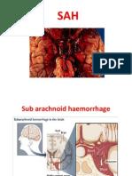 Subarachnoid-Hemorrhage.pdf