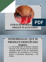 Otras Hemorragias de Origen Placentario