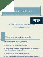 63612290 Carcinoma Epidermoide
