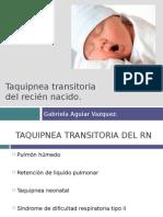 taquipneatransitoriadelrecinnacidoexpo-130501225509-phpapp01