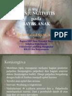 Blok 19-2012 Konjungtivitis Pd Anak Dr. Ali F, Sp.M