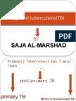 Types of TB
