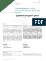Traitement orthodontique accéléré par corticotomies alvéolaires chirurgicales chez l'adulte