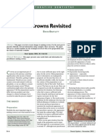 Extra-Coronal Rest - Crowns Revisited