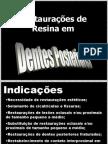15014_resinas_posteriores