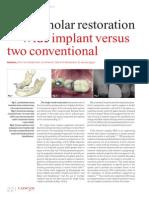Single Implant Restoration Download