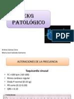 EKG Patologico.pptx