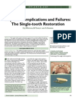 The Single-Tooth Restoration