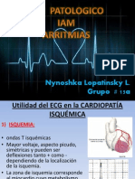 arritmias cardiaca