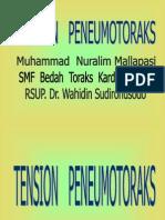 3. Tension Pneumothorax