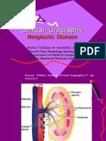 Renal Neoplasm