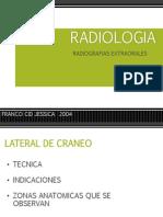 radiologiaextraorales-130407160403-phpapp02
